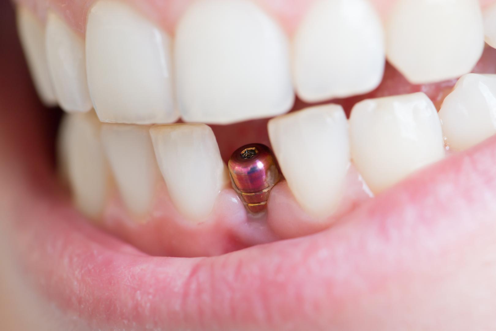 Implant dentaire : peut-on en poser plusieurs au même temps ?
