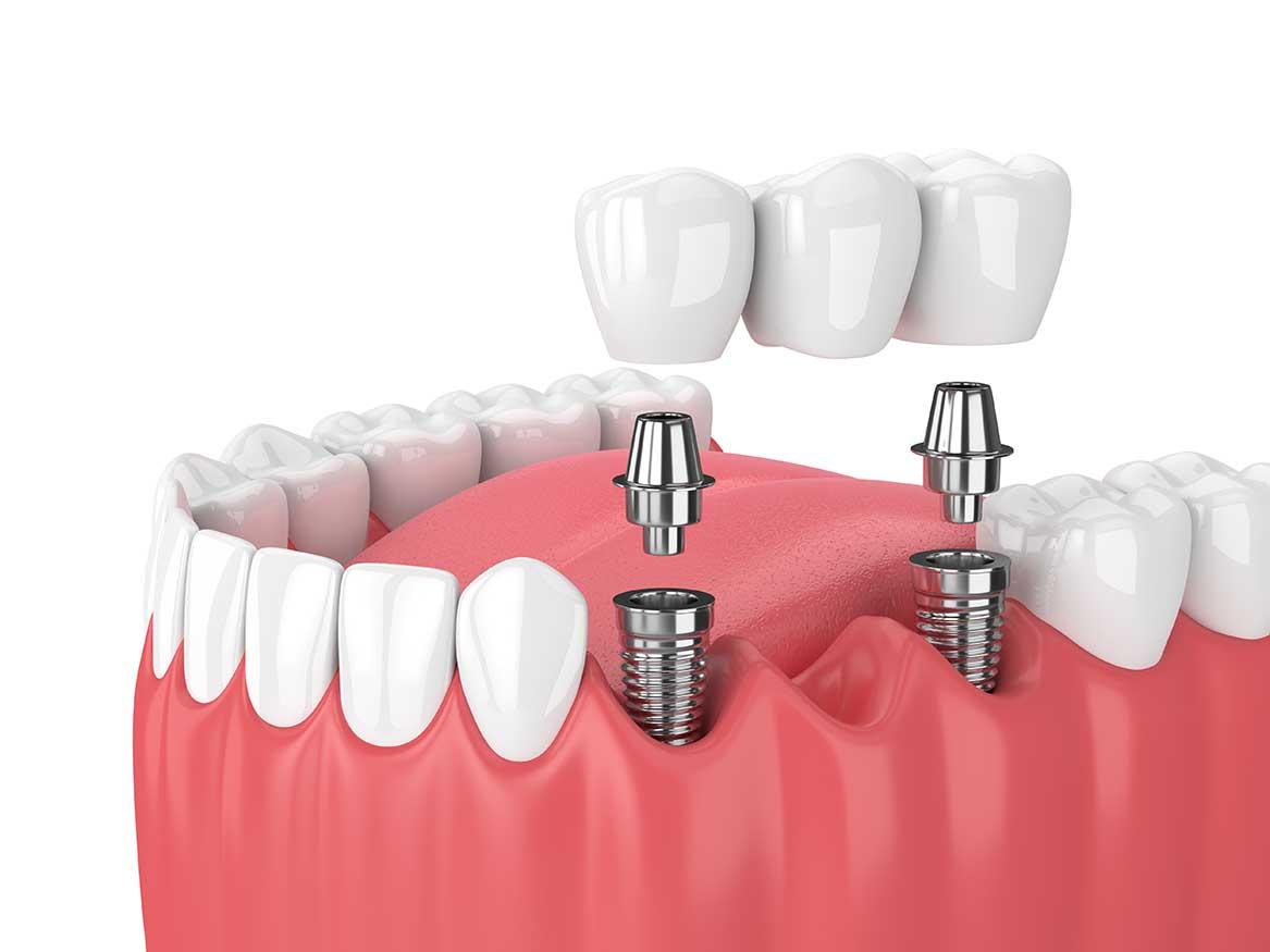 Implant dentaire Lyon : quels sont ses avantages ?